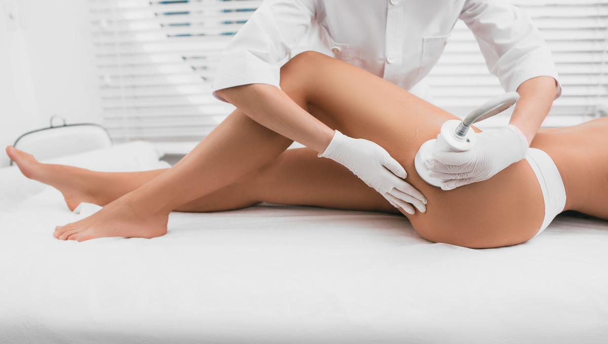 TIRS - trattamento cellulite