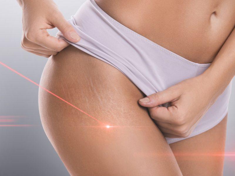 trattamento doppio laser cellulite