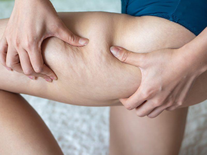 Fighting cellulite